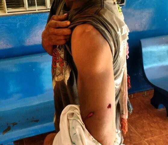 Índio com ferimento no braço; eles acusam fazendeiros pelo ataque (Foto: Divulgação/Cimi)