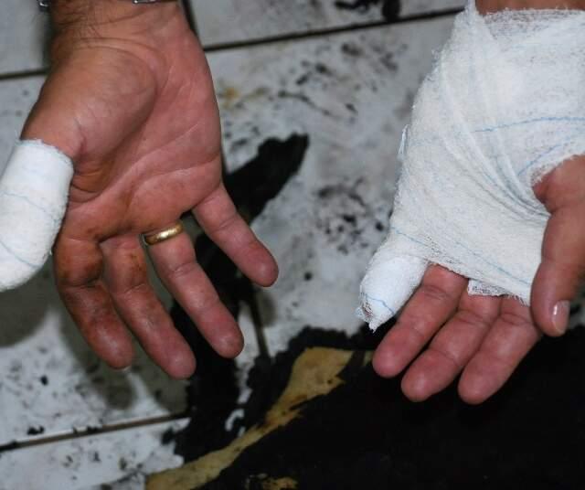 Policial Civil sofreu queimaduras de 2º grau. (Foto: Umberto-Zum)