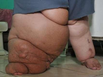 Pesando 300 quilos, Fabiano precisa de ajuda para perder 30% do peso