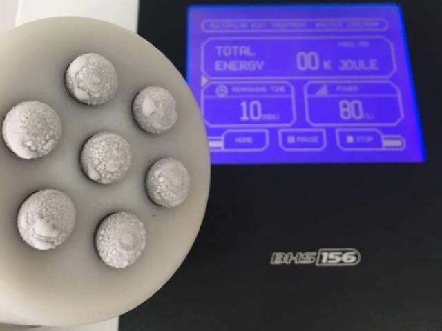 Aparelho de Criofrequência tem ponteira gelada, para estimular colágeno.