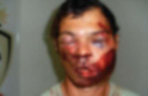 Lutador de jiu-jitsu reage a assalto e ladrão fica com rosto deformado