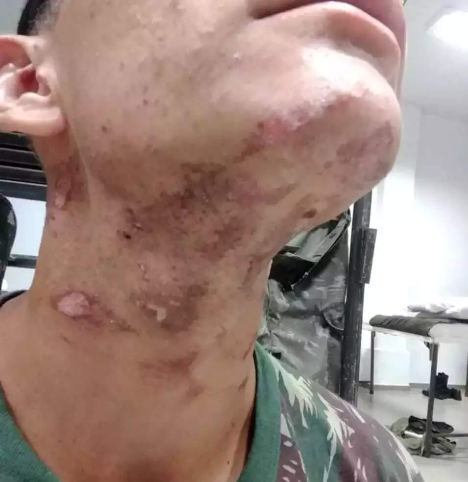 Parte das queimaduras sofridas pelo recruta do 9º Batalhão de Guarda (Foto: Divulgação)