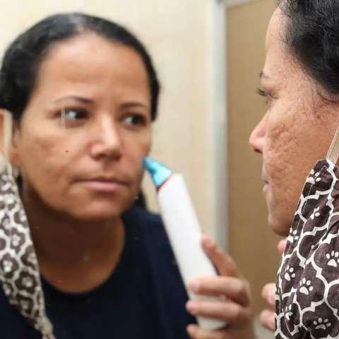 """""""Maskne"""": veja o que fazer para evitar a acne causada pelo uso de máscara"""