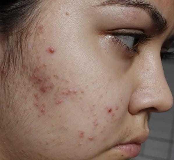 """Fora a dor constante e os efeitos colaterais intensos, jovem revela que também ficou com sua pele """"destruída"""", com espinhas e marcas de estria (Foto: Arquivo Pessoal)"""