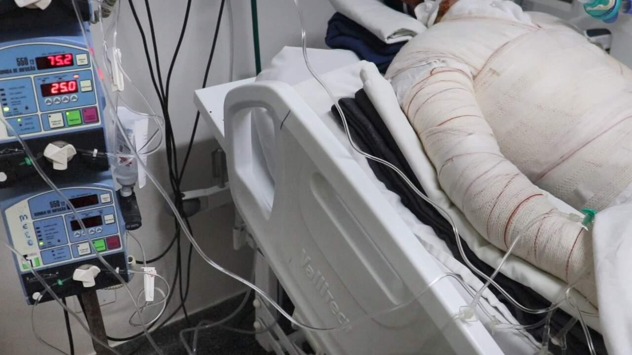 Paciente na Santa Casa, hospital de referência no tratamento de queimados em Mato Grosso do Sul. (Foto: Arquivo da Santa Casa)