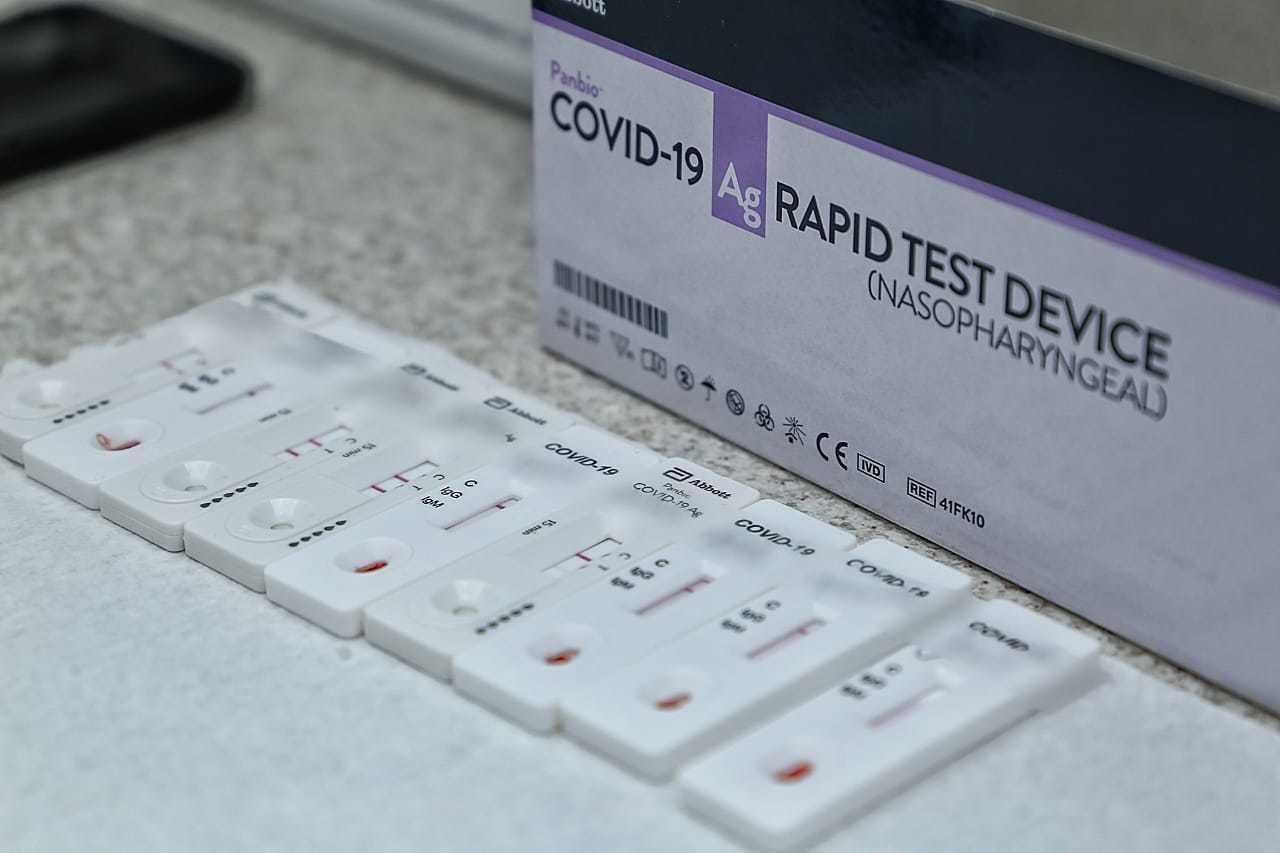 Testes ráopidos analisando amostras de sangue em laboratório de Campo Grande. (Foto: Kísie Ainoã)