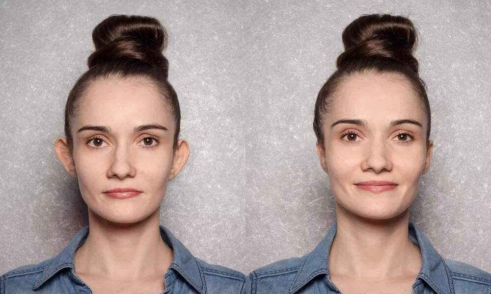 """Antes e depois da harmonização de orelhas, técnica não-cirúrgica para correção daquelas """"de abano"""" (Foto: Reprodução)"""