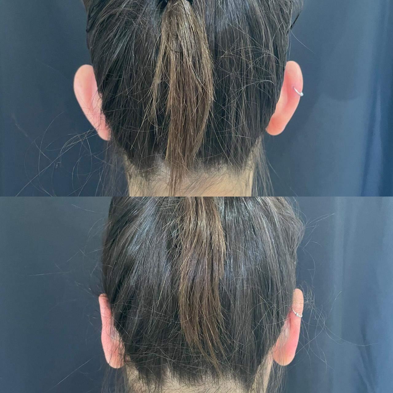 De costas, dá para ver como o procedimento fez a diferença no espaçamento das orelhas de Isabella (Foto: @vanessavsolera)