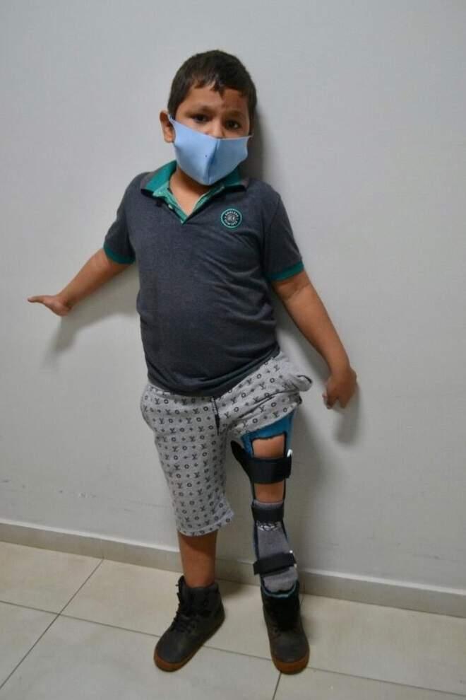 Thiago exibindo a prótese nova. (Foto: Ascom APAE)