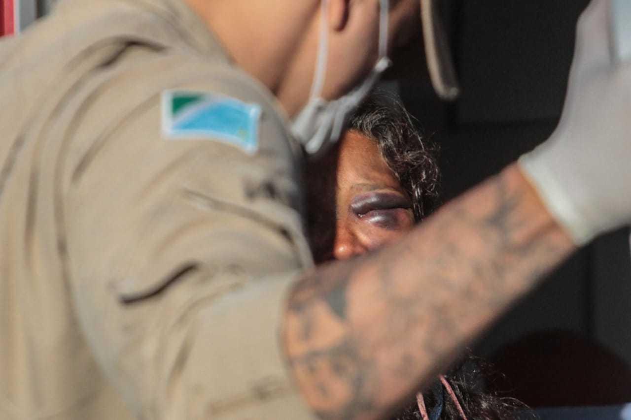 Detalhe do olho da vítima, durante atendimento dos bombeiros. (Foto: Marcos Maluf)
