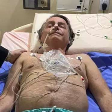 """Jair Bolsonaro é intubado em UTI por """"precaução"""", revela Flávio"""