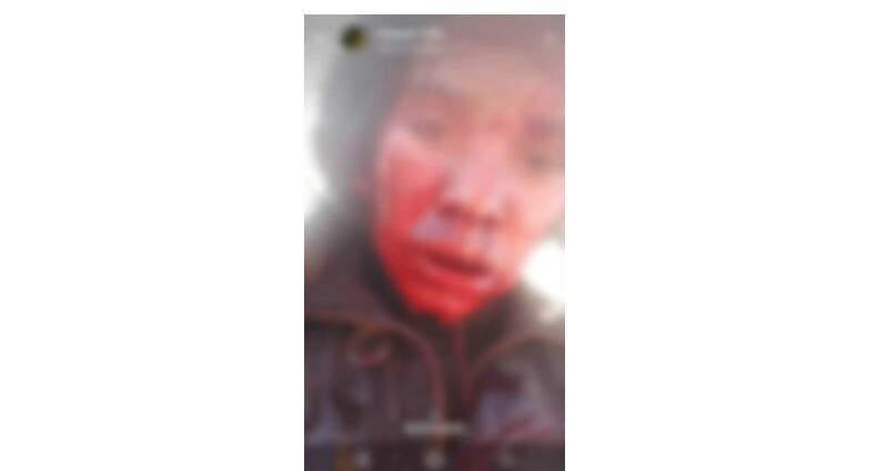 Rosto da vítima coberto de sangue. (Foto: Helio de Freitas)