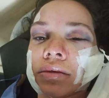 Homem que esfaqueou ex-namorada no rosto e pescoço é preso na fronteira
