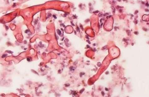 MS confirma primeiro caso de fungo negro, em paciente de Campo Grande