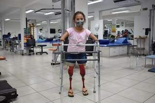 Ontem, menina ganhou na Apae prótese personalizada e encheu equipe e família de emoção. (Foto: Assessoria Apae)
