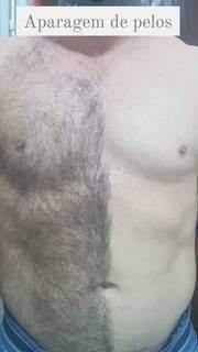 Antes e depois da aparagem dos pelos. (Foto: Divulgação)